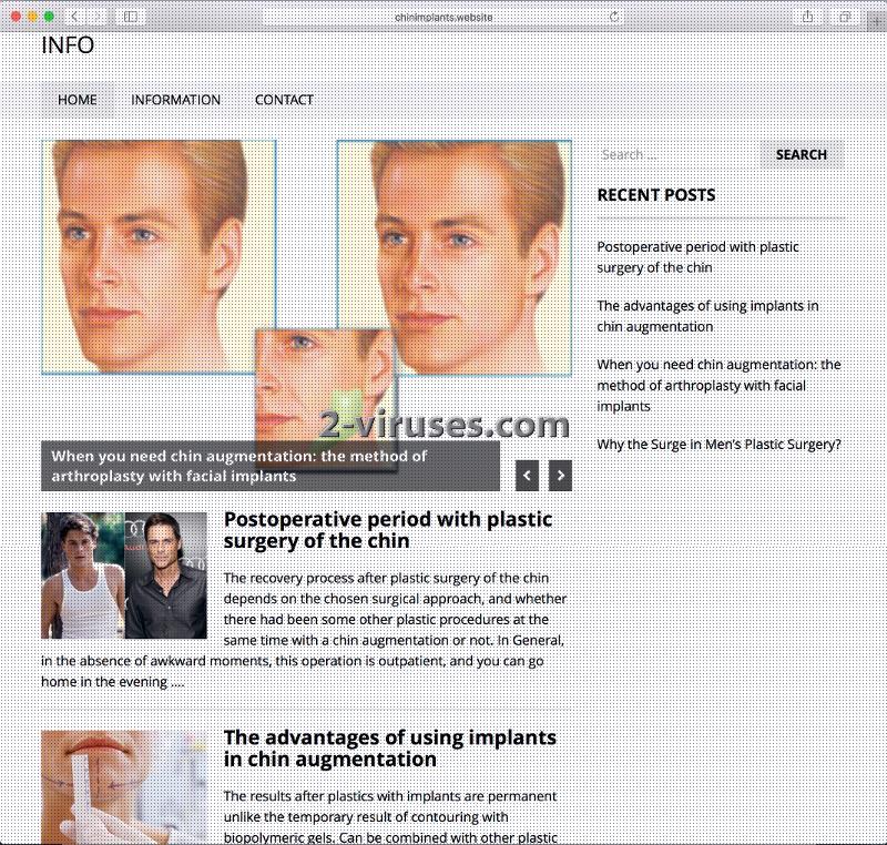 El virus Chinimplants.website